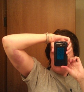 Me, my cell phone and the bruise on the inside of my left upper arm in a mirror.